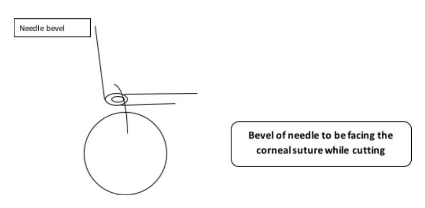 Corneal Suture Removal - Eyedocs