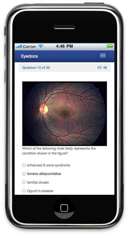 eyeQ: Ophthalmology Revision Questions for FRCOphth, FRCS